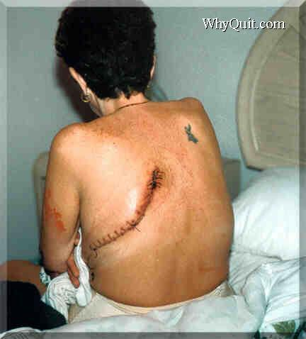 Kim's lung removal scar photo