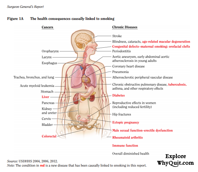 Figure 1.1A of the 2014 US Surgeon General's Report shows a picture of the internal human body pointing out the cancers and chronic diseases caused by cigarette smoking
