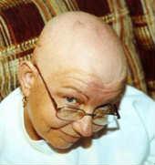Kim after chemo