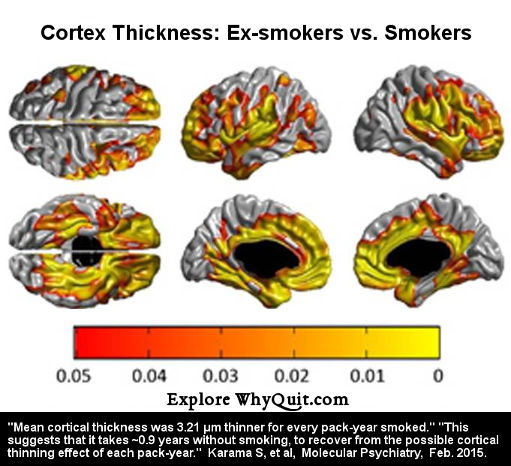 Photo from the Karama et al study showing the cerebral cortex of smokers versus ex-smokers.