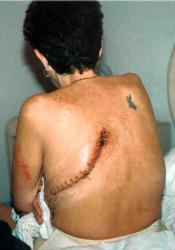 Picture of recent lung cancer surgery scar of 44 year old smoker.  Kim had her left lung removed on April 23, 2002. Click on her picture to read her full story.