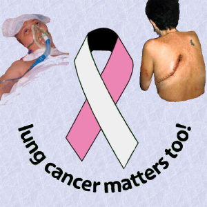 Lung Cancer Matters Too!