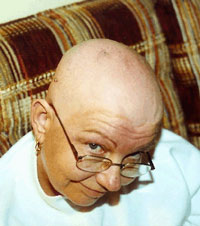 Kim pictured in April 2003 during chemotherapy.