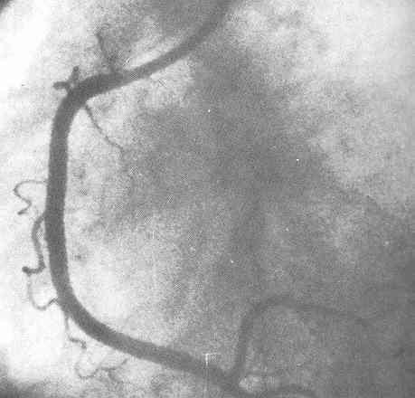 normal coronary artery with no narrowing - RCA Normal