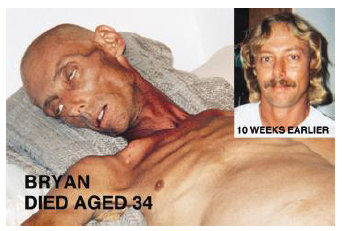 New Australian cigarette pack warning featuring this photo of Bryan Lee Curtis